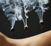 Woman's back with burning moxa on acupuncture needles, close-up